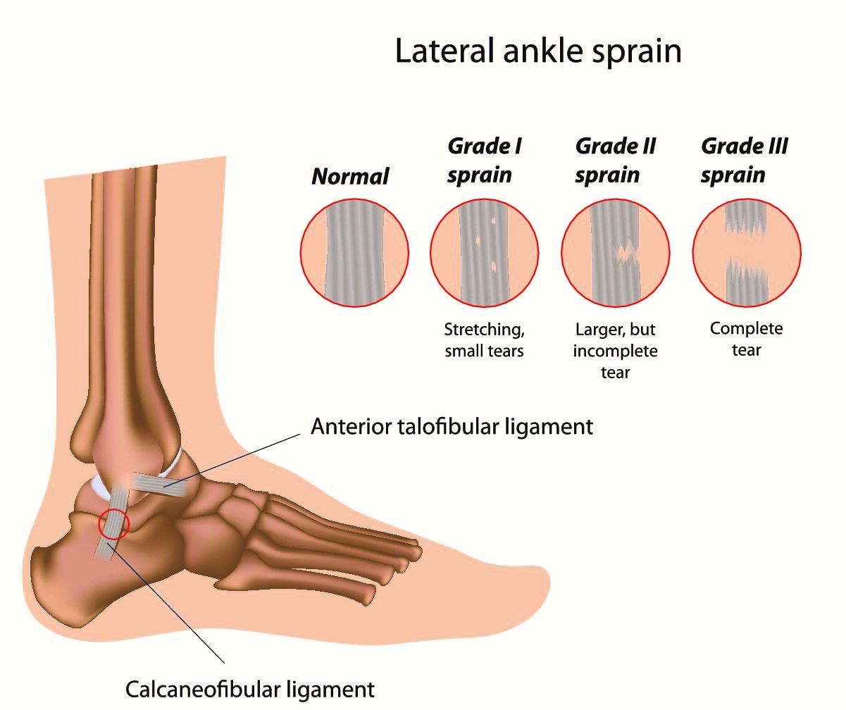 How to manage an Ankle Sprain? - Total Physiocare