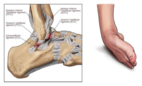 How To Manage An Ankle Sprain Total Physiocare