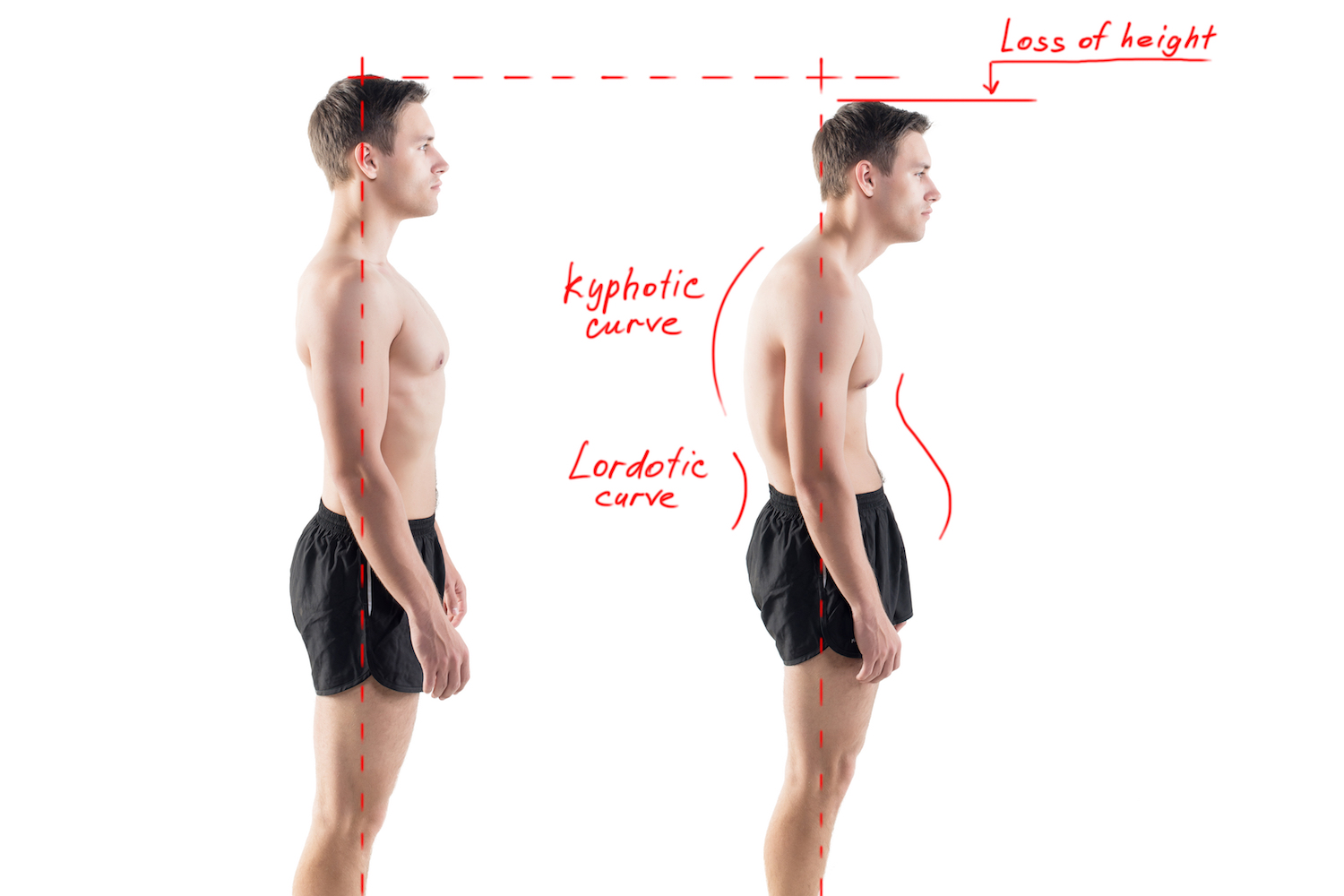 What is good posture ? Physiotherapy - Total Physiocare