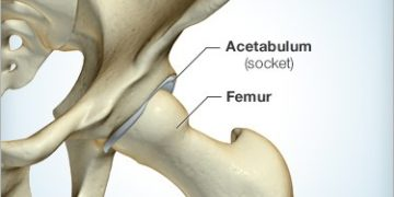 Total Hip Joint Replacement (THJR)