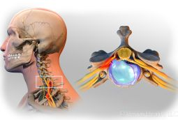 What is Cervical Radiculopathy? – Blog by Stephen Lee