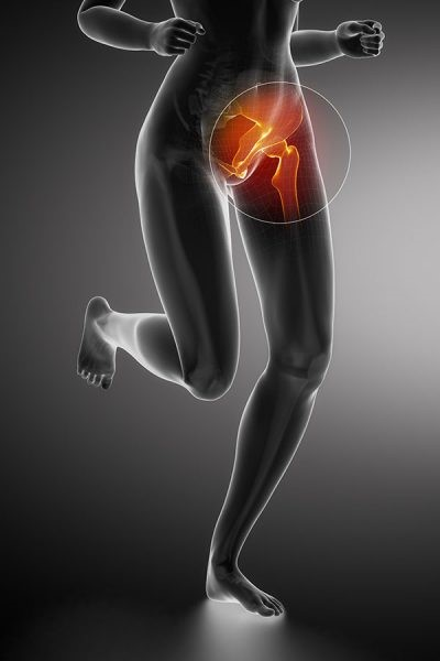 Groin Pain - Blog by Kara Giannone – Total Physiocare
