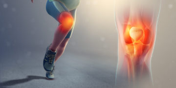 Runners Knee by Marco Cheung (Physiotherapist)