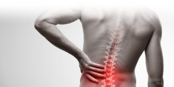 Lumbar Fusion by Thomas Andrews (Physiotherapist)